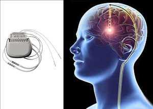 Appareil de stimulation cérébrale profonde Marché
